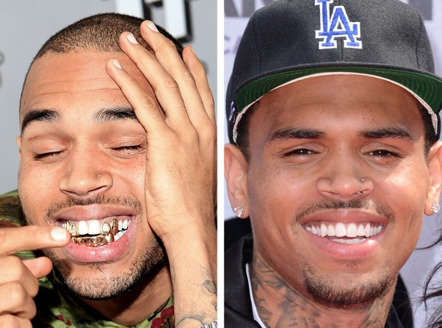 Chris Brown with teeth grillz