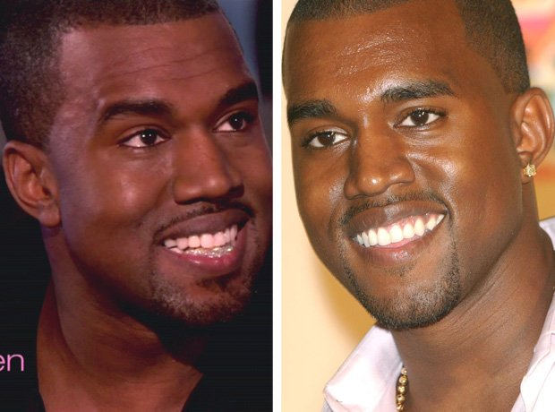 Kanye West with teeth grillz