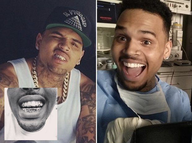Chris Brown with and without Grillz
