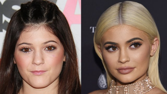 Kylie Jenner Finally Reveals The Truth Behind Her Huge