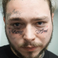 Image 2: Post Malone 'Always Tired' face tattoo