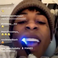 Image 1: NBA Youngboy teeth
